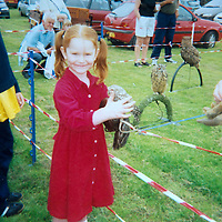 A collect photo of burns victim Alicia Gibson from Aylth, Perthshire..  In this photo Alicia is about 5 years old pictured after her accident<br /> Picture by Graeme Hart.<br /> Copyright Perthshire Picture Agency<br /> Tel: 01738 623350  Mobile: 07990 594431