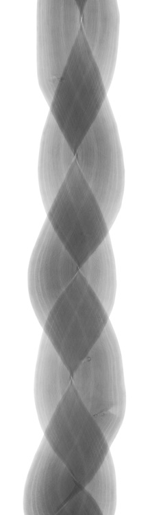 X-ray image of an Oriental bittersweet braid (Celastrus orbiculatus, black on white) by Jim Wehtje, specialist in x-ray art and design images.