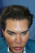 EXCLUSIVE<br /> Now the Human Ken Doll has a HAIR transplant to restore his locks - after the stress of a botched nose job caused a receding hairline<br /> <br /> He recently announced that he was quitting plastic surgery, but so-called Human Ken Doll Rodrigo Alves has just spent eight hours having hair implants at a cost of $15,000 (£11,000).<br /> The Brazilian-born Londoner underwent the procedure in LA, after stress caused him to lose 30 per cent of his hair. <br /> This latest treatment brings the 33-year-old's number of cosmetic procedures to 45. <br /> <br /> Last month Rodrigo announced he was quitting plastic surgery after his face was nearly destroyed when his seventh nose job went drastically wrong.<br /> His body rejected the nose and he suffered necrosis, where the flesh withers and dies, and recently underwent a seventh rhinoplasty surgery to fix the damage to his face.<br /> <br /> <br /> 'Due to the stress faced in my last few months I lost 30 per cent of my hair and I decided to have hair implants with stem cells performed by Dr John Kahen in Beverly Hills,<br /> <br /> 'It was a eight hour procedure under local anaesthesia. It doesn't hurt as such.<br /> <br /> 'It felt more like pins and needles in my head and a crackling sound at each time the doctor made a hole to implant another hair. The pain rate from one to ten I would give it three.'<br /> Rodrigo has declared himself delighted with the results and says that after just a week, the hair has been growing 'nice and strong'. <br /> He insists that he won't have plastic surgery after his seventh nose job went wrong, but had no intention of giving up aesthetic treatments.<br /> 'My body needs a break after so many surgeries one after the other,' he admitted. <br /> 'But I'm totally pro aesthetic procedures that be replace plastic surgery and can still improve my life style. <br /> <br /> <br /> The UK maybe is bit backwards when comes to the subject of plastic and cosmetic surgery, but we are very good when it comes to non-invasive procedures such as fat freezing lipo, laser frequency, radio frequency therapy, ultra sound th