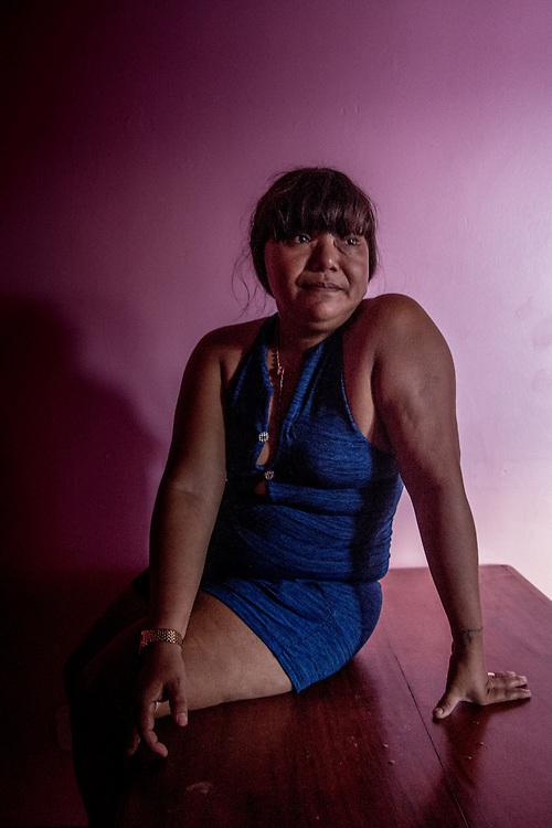 Elisabete, 28 anni. Anche lei ha sofferto l'incidente da bambina. A 12 anni, dopo la morte del padre,  ha lasciato il villaggio sul fiume dove era nata per trasferirsi a Macapà e lavorare come domestica.
