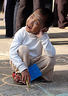 Khin Myint Noe, 9, a blind Burmese girl plays in the courtyard of the Mae Sot Hospital during patient screening as part of Operation Smile's World Journey of Smiles in Tak Province, northern Thailand on Wednesday, November 9, 2007. Operation Smile is the Norfolk, VA based medical organization that performs free cleft lip and palate facial corrective surgery to young adults worldwide.