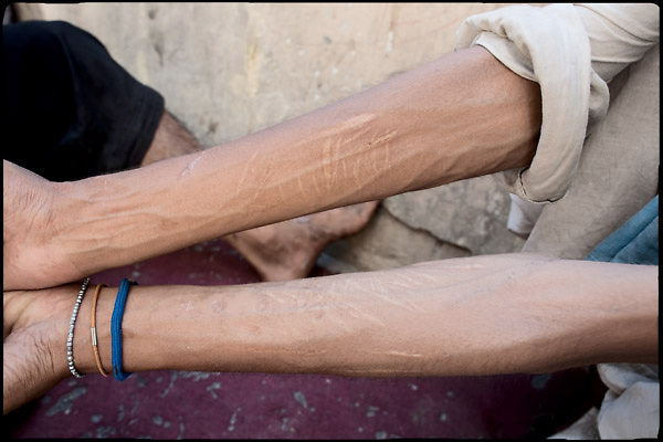 "Arms ruined by the abuse of heroin. A  young drug addict show the damages self-inflicted. Rawalpindi, Pakistan, on thursday, August 14 2008.....""Pakistan is one of the countries hardest hits by the narcotics abuse into the world, during the last years it is facing a dramatic crisis as it regards the heroin consumption. The Unodc (United Nations Office on Drugs and Crime) has reported a conspicuous decline in heroin production in Southeast Asia, while damage to a big expansion in Southwest Asia. Pakistan falls under the Golden Crescent, which is one of the two major illicit opium producing centres in Asia, situated in the mountain area at the borderline between Iran, Afghanistan and Pakistan itself. .During the last 20 years drug trafficking is flourishing in the Country. It is the key transit point for Afghan drugs, including heroin, opium, morphine, and hashish, bound for Western countries, the Arab states of the Persian Gulf and Africa..Hashish and heroin seem to be the preferred drugs prevalence among males in the age bracket of 15-45 years, women comprise only 3%. More then 5% of whole country's population (constituted by around 170 milion individuals),  are regular heroin users, this abuse is conspicuous as more of an urban phenomenon. The substance is usually smoked or the smoke is inhaled, while small number of injection cases have begun to emerge in some few areas..Statistics say, drug addicts have six years of education. Heroin has been identified as the drug predominantly responsible for creating unrest in the society."""