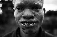 """NAMPULA, MOZAMBIQUE - JULY 19, 2016:<br /> Electerio Joao, 23 years old, lives in Namina, Nampula, and is one of many cases in which family members themselves who abduct and try to sell to make some money. In October 2015, his brother in law called him to help him make a """"work and earn money"""" and he eventually was kidnapping. After the kidnapping the brother in law and three friends went to the side of the national road and tried to find a buyer for the Electerio. Fortunately the information reached the police who posed as buyer and ended up arresting three of the four kidnappers. It was the first situation that the police could catch people in the act. Many of the known cases, in Malawi and in Mozambique, are the family themselves who abduct albinos."""