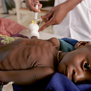 August 4, 2005 - Maradi, Niger - A severly malnourished child is treated at the intensive care unit at the MSF feeding center in Maradi, Niger. Photo by Evelyn Hockstein/Polaris