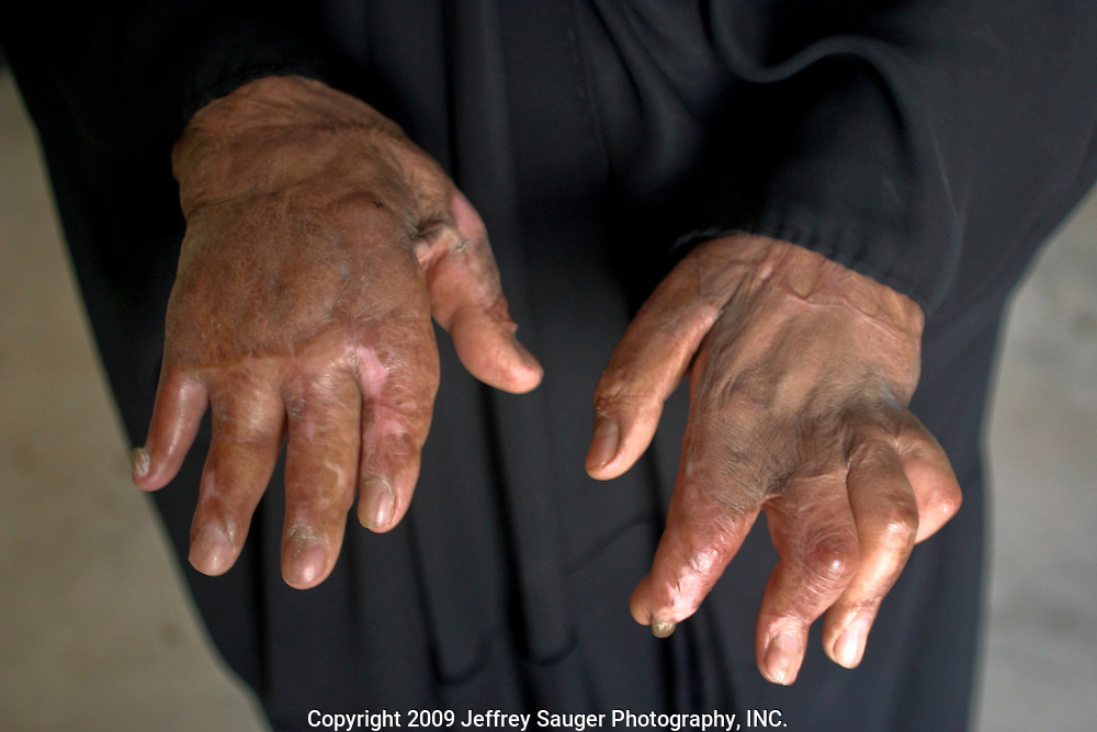 """ I thought this was the end of my life,"" recalls Naddwa Hashem, 38, as she shows the injuries inflicted to her hands during an attack by Iraqi forces in 1991 on the village of Suq ash Shuyukh, about 20 miles southeast of Nasiriyah, Iraq, Sunday, August 3, 2003. ""Right away, I knew we had no money for surgery, Iraq was in a war and my company (she's an English teacher) couldn't pay for it. Many people have died from the same thing. I thought it was the end.""..Opposition forces from Nasiriyah, a Shiite stronghold, held off Iraqi forces for 21 days. When it became apparent that U.S. forces were not going to help fight the Iraqi forces, Saddam ordered large numbers of troops to crush the uprising. An Iraqi bomb exploded in Hashem's house, her clothes caught on fire and her hands were horribly burned...In 1991, she had two surgeries but, was unable to complete her treatment because she and her husband Hussein Al-Banaa couldn't afford it after already spending 1 Million Iraqi Dinar...Hussein Al-Banaa is Malik Al-kasid's brother-in-law. His family now lives in the house Al-kasid's family fled after the Gulf War and their part in the uprising against Saddam Hussein in 1991."