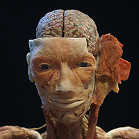 London, United Kingdom - May 2002 - Gunther von Hagens, Body Worlds exhibition in Brick Lane.