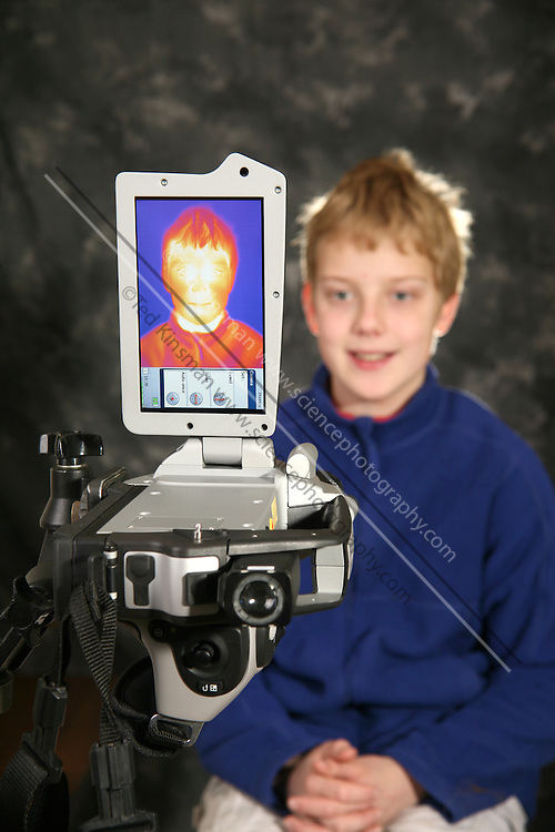 Boy in front of a thermal camera.  This image shows both the thermal image (thermogram) and the boy.      A normal visible light image and a far infrared image.  The different colors on the camera represent different temperatures on the boy. The lightest colors are the hottest temperatures, while the darker colors represent a cooler temperature.  Thermography uses special cameras that can detect light in the far-infrared range of the electromagnetic spectrum (900?14,000 nanometers or 0.9?14 µm) and creates an  image of the objects temperature.  These cameras are of particular importance for medical applications where they can be used to detect skin disorders and various medical conditions including infections.