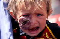 "KABUL 03 August 2005..Walking in a crowded street of Kabul, I come across a woman carrying  a child with a dark lump on her face. ..The only words the woman says to me are:' DOCTOR.... DOCTOR'...I write down her name & address:..""Shabana, Panza Family, Khair-Khana, Kabul"""