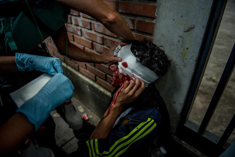 "CARACAS, VENEZUELA - JUNE 3, 2017:  Medical students apply first aid to a protester that was shot in the head with buckshot by security forces.  Hundreds of medical students volunteer on the front line of clashes as ""Green Helmets"" - first responders that evacuate and give first aid to injured protesters.  Many young medical students are angry about the poor state of the public healthcare system.  Over 85 percent of medicines are either impossible, or very difficult to find in Venezuela.  Public hospitals face shortages of even the most basic supplies, like gauze, latex gloves, syringes - even running water. Many say they see volunteering with the Green Helmets as using their talents to supporting the protest movement taking over the streets of Caracas. PHOTO: Meridith Kohut"