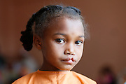No. 74, Sidonie Haritiana, UCL, unilateral Cleft lip, female, 7 years old, <br /> before, portrait, <br /> <br /> Operation Smile South Africa<br /> Operation Smile Mission to Hospital Joseph Ravoanangy Andrianavalona,<br /> Antananarivo, Madagascar. September 17th - 29th 2011<br /> <br /> &copy; Operation Smile Photo / Zute &amp; Demelza Lightfoot<br /> www.lightfootphoto.com