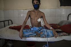 March 24, 2017 - Dhaka, Bangladesh - AMIR HOSSAIN (45) has been suffering from TB for last 2 months at National Institute of Diseases of Chest and Hospital on World Tuberculosis Day in Dhaka, Bangladesh. He receives daily injections and has tube put into infected lung to drain that. Tuberculosis (TB) is a worldwide public health problem. The incidence of TB is much higher in developing countries such as Bangladesh. The country ranks sixth among 22 highest burden TB countries in the world. (Credit Image: © Probal Rashid via ZUMA Wire)
