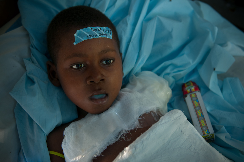 1/21/10 4:28:16 PM -- Port-Au-Prince, Haiti. -- Daily coverage of the aftermath of the 7.0 earthquake in Haiti -- ..A young boy who just had his arm amputated sits in a bed, near his toy truck, outside the Community Hospital in Port au Prince, Haiti Thursday, Jan. 21, 2010. More than one week after a 7.0 magnitude earthquake patients are still pouring in to get medical treatment....Photo by William B.  Plowman.