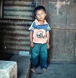 Elmer Diaz Bixcul, 4 years, in the village of San Gregorio. He has six siblings, mother and father. Beside himself, three of his siblings are chronically malnourished. His parent's lives on whatever day to day jobs that are available.