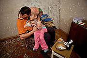 Vitaly cares for his fifteen year old daughter Sasha in their one bedroom appartment in the city of Gomel in Southern Belarus.He cares for her during the day and must go to work as a night watchman each evening. Chernobyl's human costs are widespread affecting about seven million people.A generation later children are being born with birth defects ,heart problems and thyroid cancer.The crippled economy of Belarus has led to poverty, social problems and domestic abuse.