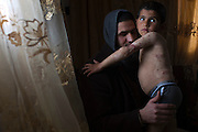 Injured Palestinian boy Yamen Achemd Abu Jaber ,4, with his uncle Adnan Abu Jaber at his uncle's home in Nussarat, Gaza February, 21,2015. Yamen was severely burned during last summer's war between Israel and the Hamas -controlled Gaza Strip on July 29th when his family's home was hit by an Israeli air strike in the El Bourej refugee camp in Gaza . Eighteen family members were killed including his mother, father , grandfather and five year-old sister . Adnan is now taking care of his brother's orphaned son and says that the boy frequently wakes during the night screaming from nightmares .Photo by Heidi Levine/Sipa Press).<br /> (Photo by Heidi Levine/Sipa Press).