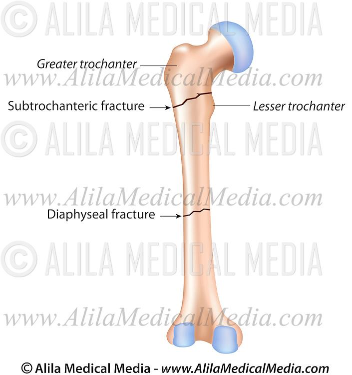 atypical hip fractures alila medical images broken bone clipart broken bone clip art svg file