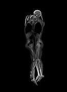 The bare bones of a relationship: Artists use X-rays to take haunting photographs of couples in an embrace<br /> <br /> Macabre yet strikingly beautiful images of skeleton couples have been produced by two Japanese art students.<br /> <br /> Ayako Kanda and Mayuka Hayashi used a CT scanner and X-ray machine to photograph four couples in intimate embraces - but the results are not in the least bit cuddly.<br /> <br /> While the photographs might be a simple extension of medical X-rays, they paint an intimate yet eerie picture of human relationships.<br /> The students, from Musashino Art University, Japan, said: 'X-ray images usually show the finite nature of our bodies composed only of matter.'<br /> <br /> 'But these couples' portraits reveal a pulse that isn't normally seen.'<br /> <br /> The duo won a prize in the recent Mitsubishi Chemical Junior Designer Awards for their stark compositions according to Japanese art and culture blog, Spoon & Tamago.<br /> <br /> They explained on the Mitsubishi Chemical awards website that they wanted to 'eliminate the information of two people,' and get to the bare bones of a relationship, highlighting the 'pulse' between a couple.<br />  The artists didn't want to dwell on sentiment like more traditional portraits.<br /> <br /> Many couple-centred photographs focus on the way two lovers look at each other,but in this new installation, they concentrated solely on the position of the bodies.<br /> <br /> While the pair are not the first to exploit X-ray machines for art they were interested in the way bones 'overlap' between the two transparent bodies.<br /> <br /> The artists added that the images manage to be both familiar and unusual and are perhaps  compelling because they strip away all the individual characteristics of couples to dwell on the mechanics of the human body.<br /> ©Ayako Kanda and Mayuka Hayashi/Exclusivepix