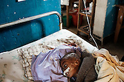 Mweso Hospital, a malnutrited child trying to get some milk from his mother breast, the mother is affected by malaria, sept 2013