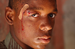 James Camille,16, was shot a few hours earlier in gunfire that he says came from UN forces and Hatian Police in Belair, one of the most dangerous neighborhoods in Port-au-Prince.  His body was peppered with shotgun pellets and bullets, one of which grazed his eyebrow.  The security situation in Haiti has deteriorated over the past few months with gangs and former military taking countrol of neighborhoods and towns across the country.