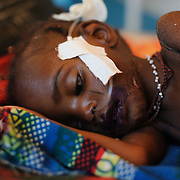 Two year-old Nasseyba Souley at a Save the Children stabilisation centre in Aguie in the Tessaoua region of Niger. After Nasseyba vomited for 24 hrs and suffered from diarrhea for two weeks, her mother took her to the health post in their village of Hankaka. Nasseyba did not respond to the treatment prescribed, and after a further three days her mother took her to see a traditional healer, who prescribed a powder containing unknown ingredients, together with instructions that for the next 48 hours Nasseyba should be given nothing but the powder mixed with fermented milk. After 48 hours the diarrhea had not stopped, and Nasseyba was too weak to eat and unable to stand. Her mother took her to the health centre in Dan Bouzou, a considerable distance from their home, whereupon she was immediately transferred to the stabilisation centre. With impaired liver function as a result of severe acute malnutrition, her doctors say she is also suffering from toxic shock, and is clearly fighting for her life.
