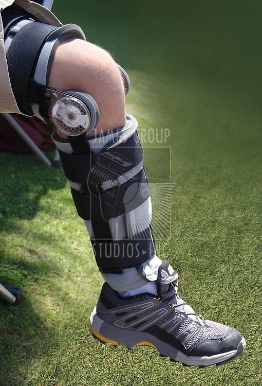 knee brace on leg