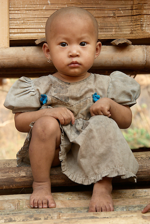 A refugee girl at Camp Ei Tu Hta on the Salaween River, Myanmar (Burma) on Monday, April 2, 2007.  The camp started in early 2006 when 815 people fled from Taungoo District in Karen State due to increased violence by the Burmese State Peace and Development Council (SPDC).  It is believed that these people along with many others who did not make it to the camp were displaced for being too close to the new Burmese captial city Naypyidaw. The camp population is currently 2,971 with new arrivals coming each day.  Thousands of ethnic Karen are internally displaced people (IDP's) living in fear of their government.  Human rights groups have documented thousands of abuses by the SPDC including forced labor, rape, human mine sweeping, murder, and ethnic cleansing.