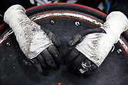Matt Milstead shows the tape job on his gloves after playing quad rugby at the winter Meijer State Games of Michigan on Saturday, Feb. 2016, at Cornerstone University in Grand Rapids, Mich. The Olympics style games featured 21 sports, however due to warm weather many outdoor competitions involving snow were cancelled. (Nick Gonzales | Mlive.com)