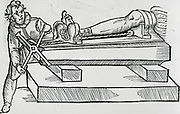 Apparatus for reducing dislocation of the knee. Woodcut from a book on field surgery, 1593.