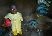 ABUSHE, THE CHILD WITH PLASTIC EYES<br /> <br /> Abushe lives in Jinka, southern Ethiopia, which is the gateway to the Omo Valley tribes. He is 8 years old. Like hundreds of other children, he wanders in the streets, where he kicks a ball in endless football games with friends his age. They have turned the sidewalks into their own Maracana but are regularly chased away by the banks and shopkeepers.<br /> <br /> No one would pay any attention to Abushe, who is dressed in a yellow t-shirt decorated with a clown fish that is too big for him, but if you catch a glimpse of his eyes, their incredible magnetic colour will stop you in your tracks. If the region was not so remote and saw only few visitors, one would ascribe it to the effects of great miscegenation, but Abushe actually suffers from the Waardenburg syndrome.<br /> <br /> One of the characteristics of this syndrome is an abnormal spacing between the eyes – which is moderately the case for Abushe – but mainly a special pigmentation of the irises. This phenomenon is rare and is thought to occur every 300,000 births on all continents. Its effects are obviously striking on a child with black skin like the little Ethiopian.<br /> <br /> In Africa, being outside the norm will often mean humiliation, or worse, persecution or even ritualistic crimes, as with albinos whose nails, fingers or hands are sold for a fortune to businessmen or politicians seeking better luck.<br /> <br /> Abushe's father has died and his mother is struggling to raise him. She had to go work on a farm several hours away from Jinka for a few months for the small salary of 1.50 euros per day – hardly enough to survive, especially after paying the 5 euro monthly fee for the school.<br /> So, his grandmother is taking care of him. He was living and sleeping in her tukul, the traditional hut made of wood, adobe and thatch, when one night, a fire broke out. In the middle of the tukuls, there is always a fireplace which is used to cook, to repel insec