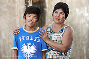 39 year old Romeo Geronimo with his sister during screening.  Isabel United Doctor Medical Centre. Operation Smile's 2015 mission to Cauayan city. Philippines. 14th -21st February 2015.<br /> <br /> (Operation Smile Photo - Zute Lightfoot)