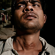 22-year-old Nobe Hussein got shot two times in the neck by the police as fights erupted when Rakhine Buddhists attacked his quarter in Kyaukpyu, October 2012.