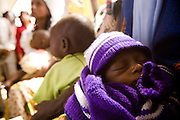 A malnourished baby sleeps on his mother's lap at the Garga Sarali integrated health center in the town of Garga Sarali, near Bertoua, Cameroon, on Tuesday September 15, 2009.
