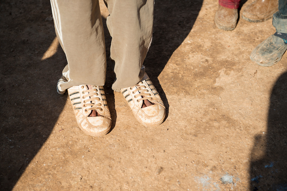 A Syrian refugee stands with shoes but no socks outside his tent at the camp for displaced persons in Atmeh, Syria, which is located adjacent to the Turkish border. He fled violence near his home in Idlib Province.