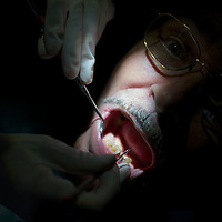 A dentist cleans a patients teeth at the Remote Area Medical clinic in Wise, Virginia July 20, 2012.  Organizers hope to bring free medical, dental and vision care to more than 3500 uninsured and underinsured people in the rural Virginia area.  REUTERS/Mark Makela   (UNITED STATES)