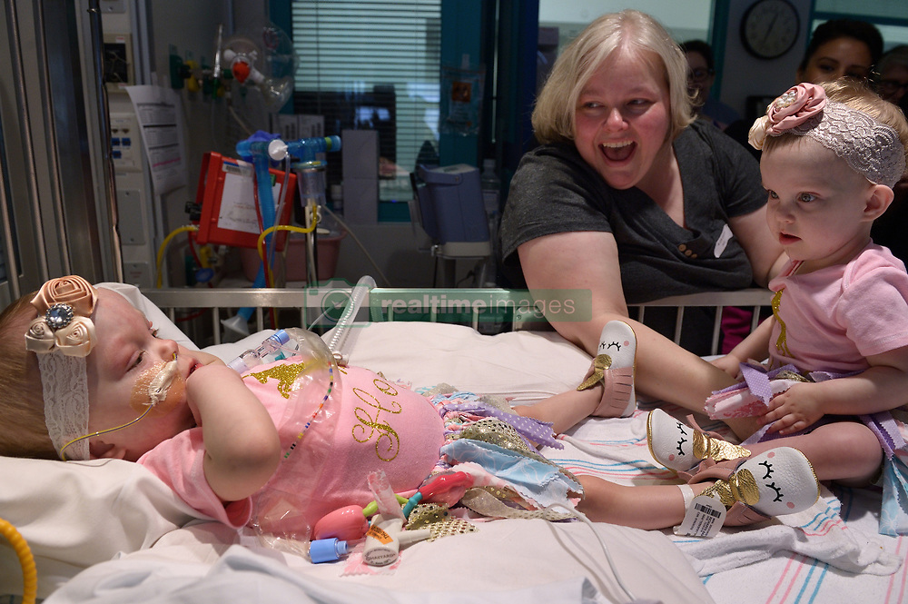 "The second of the formerly conjoined twin girls who was separated in a seven-hour surgery earlier this year has been discharged after spending 482 days in hospital. Hope Elizabeth Richards was allowed home last week [April 25, 2018], eight weeks after her sister Anna Grace was discharged from Texas Children's Hospital in Houston on March 2. Her mother Jill Richards said: ""This is the moment it all feels real. ""We are so excited for Hope to join Anna and her brothers at home. Our family is eternally thankful for the doctors, nurses, child life specialists, physical therapists and many others at Texas Children's who took incredible care of our precious girls."" The twins, who are now aged 16 months, were successfully separated during a mammoth surgery that involved a multidisciplinary 75-strong team of surgeons on January 13. The sisters were previously conjoined at their chest and abdomen, through the length of their torso and shared the chest wall, pericardial sac (lining of the heart), diaphragm and liver. The girls were delivered via C-section on 29 December, 2016, at 35 weeks gestation. The Richards family, from North Texas, learned Jill was carrying conjoined twins during a routine ultrasound. The family was then referred to Texas Children's Fetal Center, where they underwent extensive prenatal testing, consultation and development of plans to achieve a safe delivery and postnatal care.  They temporarily relocated to Houston in order to deliver at Texas Children's and be close to the girls during their hospital stay. 25 Apr 2018 Pictured: CAPTION: Formerly conjoined twin girl Hope Elizabeth Richards is released from Texas Children's Hospital on April 25, 2018, and her sister Anna Grace, who was discharged six weeks prior, was there to meet her sibling. LOCAL CAPTION: Hope Elizabeth and Anna Grace Richards reunite at Texas Children's before Hope is discharged. Photo credit: Paul Vincent Kuntz/ MEGA TheMegaAgency.com +1 888 505 6342"