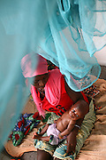 Isatu Kanu, 18, with 4 month old Amadu Kargbo, at the therapeutic feeding center of the Magbenthe hospital in Makeni, Sierra Leone, on Thursday February 26, 2009. This is her second child, the first one died of edema at the age of 14 months. She got pregnant with the first child at the age of 15.