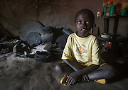 ABUSHE, THE CHILD WITH PLASTIC EYES<br /> <br /> Abushe lives in Jinka, southern Ethiopia, which is the gateway to the Omo Valley tribes. He is 8 years old. Like hundreds of other children, he wanders in the streets, where he kicks a ball in endless football games with friends his age. They have turned the sidewalks into their own Maracana but are regularly chased away by the banks and shopkeepers.<br /> <br /> No one would pay any attention to Abushe, who is dressed in a yellow t-shirt decorated with a clown fish that is too big for him, but if you catch a glimpse of his eyes, their incredible magnetic colour will stop you in your tracks. If the region was not so remote and saw only few visitors, one would ascribe it to the effects of great miscegenation, but Abushe actually suffers from the Waardenburg syndrome.<br /> <br /> One of the characteristics of this syndrome is an abnormal spacing between the eyes &ndash; which is moderately the case for Abushe &ndash; but mainly a special pigmentation of the irises. This phenomenon is rare and is thought to occur every 300,000 births on all continents. Its effects are obviously striking on a child with black skin like the little Ethiopian.<br /> <br /> In Africa, being outside the norm will often mean humiliation, or worse, persecution or even ritualistic crimes, as with albinos whose nails, fingers or hands are sold for a fortune to businessmen or politicians seeking better luck.<br /> <br /> Abushe's father has died and his mother is struggling to raise him. She had to go work on a farm several hours away from Jinka for a few months for the small salary of 1.50 euros per day &ndash; hardly enough to survive, especially after paying the 5 euro monthly fee for the school.<br /> So, his grandmother is taking care of him. He was living and sleeping in her tukul, the traditional hut made of wood, adobe and thatch, when one night, a fire broke out. In the middle of the tukuls, there is always a fireplace which is used to cook, to repel insects and to provide heat at night.<br /> <br /> <br /> <br /> <br /> <br /> <br /> <br /> <br /> <br /> <br /> <br /> Abushe and his g