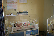 A baby lying in an incubator in Kisiizi Hospital, Uganda.