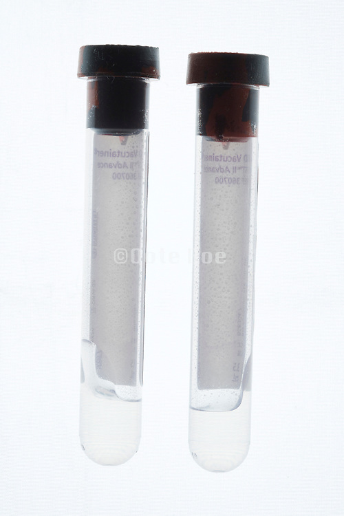 two empty blood vials