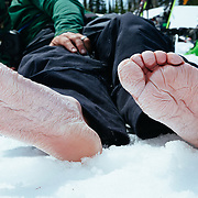 Chris Kitchen's nasty feet after a day of skiing.