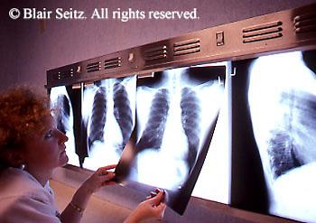 Medical Physician, X-rays, X-ray Display, Lightbox and X-rays, nurse reviews X-rays,