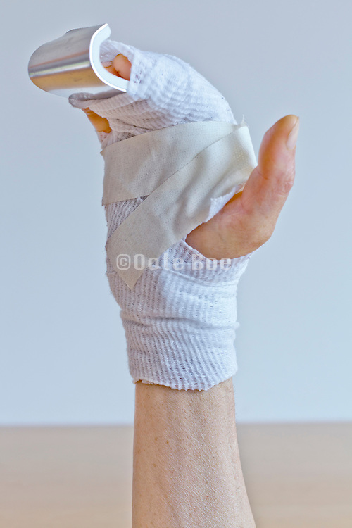 bandaged broken hand with splint