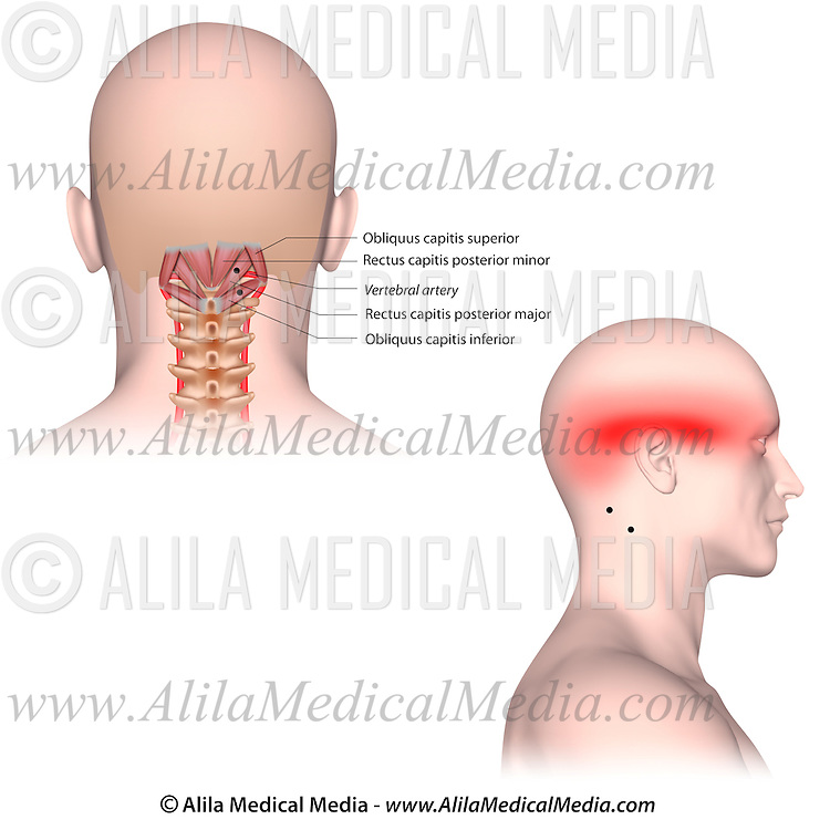 Trigger points and referred pain patterns for the suboccipital ...
