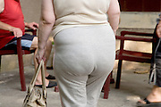 buttocks of an obese middle aged woman