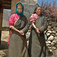Affected by the Kashin-Beck Disease, in the Lhasa river valley. Tibet, China. April 14, 2007. Photo: Bernardo De Niz