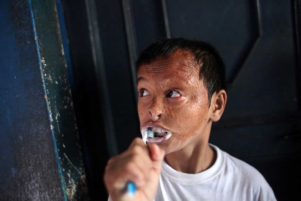 Burn - Life Goes On - Bikash Shrestha, 12, brushes his teeth at the Disabled Newlife Centre in Kathmandu, Nepal. Shrestha lost several fingers and suffered severe burns to his face from a cooking fire.