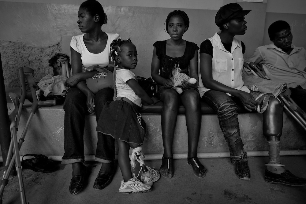Claudia Romain, 2 1/2 years old, lost her right leg from the earthquake, waits for her physical therapy to begin at Healing Hands Haiti. <br /> <br /> Healing Hands Haiti (HHH) in Port Au Prince has been established for 12 years since 1999. Currently, HHH is constructing a new facility in Port Au Prince because their old clinic was destroyed from the earthquake.   HHH provides physical therapy, counseling, prosthetics, and support for free or very little cost to Haitians.  Their funding comes from private donations and organizations such as Handicap International, Mission Europeene Aide Humanitarian, International Committee of the Red Cross (ICRC), American Red Cross, Newman's Own, Direct Relief International (DRI), SOROS Open Society Foundation, and USAID which pays for employees, doctors, supplies, and facilities.  The motto of HHH is &quot;to serve the people of Haiti is to enable them to help themselves.&quot;   Thus, most of their employees are Haitians with very few foreign expats. Furthermore, HHH recruits and teaches young Haitian students prosthetic and orthotic skills and physical therapy in a specialized program that will enable them to earn a degree approved by World Health Organization.