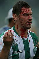 20091206: CURITIBA, BRAZIL - Coritiba vs Fluminense: Brazilian League 2009. In picture: Coritiba supporter hurt after invade the pitch and attack players and staff. PHOTO: CITYFILES