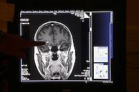 .Paris, France...brain scan..MRI (IRM) Magnetic Renonance scanner..Hospital St. Louis, a Public Assistance hospital in Paris.
