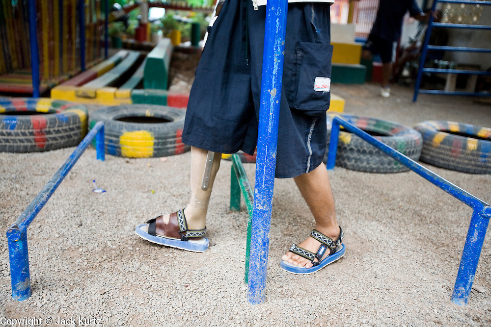 27 JUNE 2006 - SIEM REAP, CAMBODIA: A girl who lost her leg to a landmine goes through physical therapy at Handicap International in Siem Reap, Cambodia. Handicap International helps Cambodians maimed by mines and unexploded ordinance as well as traffic accidents and disease adjust to a life without limbs. Cambodians are still wrestling with the legacy of the war in Vietnam and subsequent civil wars. At one time it was the most heavily mined country in the world and a vast swath of Cambodia, along the Thai-Cambodian border, is still mined. In 2004, more than 800 people were killed by mines and unexploded ordinance still found in the countryside.  Photo by Jack Kurtz